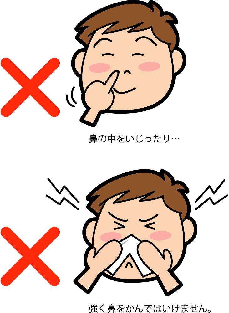 病気 子供 鼻血